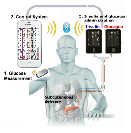 Bionic-Pancreas-System-Graphic