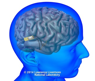 implantable-neural-device