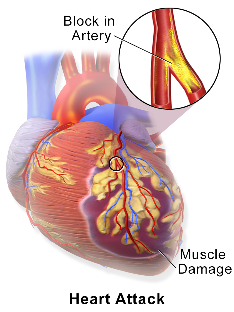 transplant drug could turn the tide of heart attack damage – science