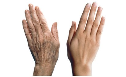 Aging-Cell-Or-Cell-Ageing